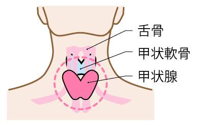 甲状腺疾患イメージ